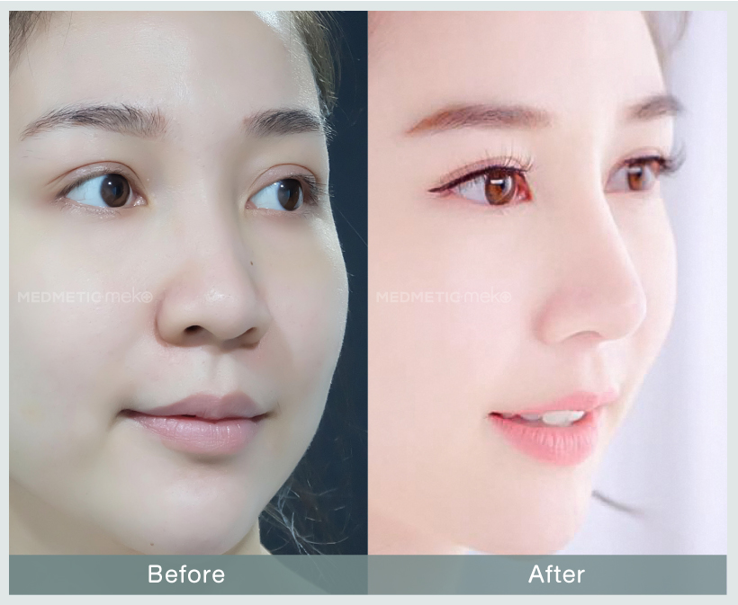 Review-B&A-website-มิ้น