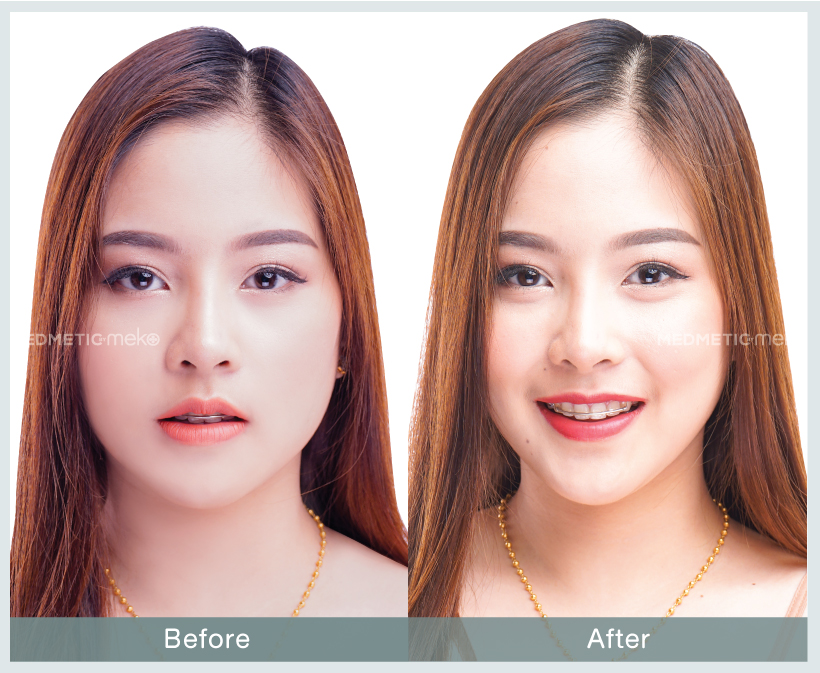 Template-before-after-website-Fers