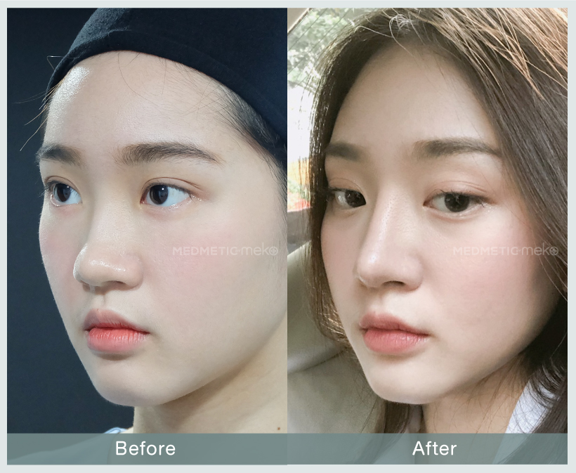 Review-B&A-website-มีน